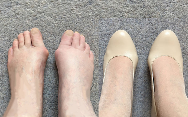 calla shoes for bunions sophia court shoe customer review