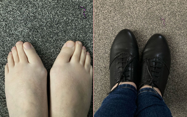 feet with bunions in and out of shoes