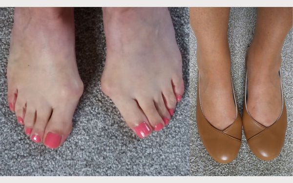 customer photo review showing their feet with and without shoes