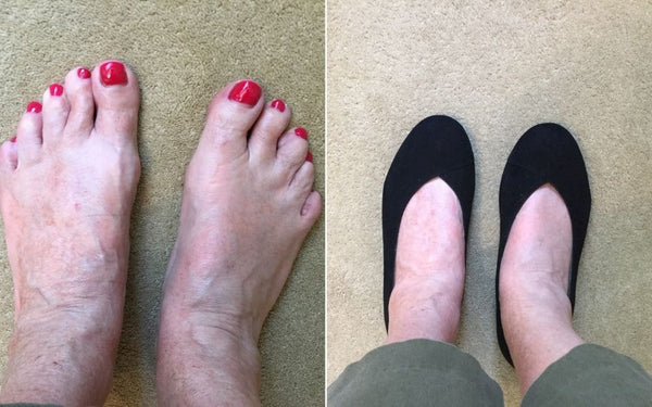 review of calla shoes for bunions by yvonne