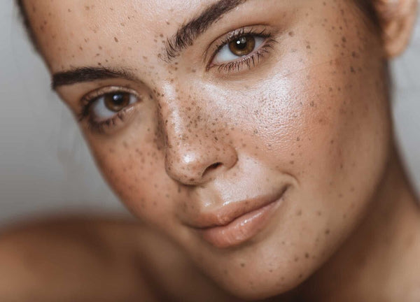 Hyperpigmentation Situation? Here's how to treat (and get rid) of it.