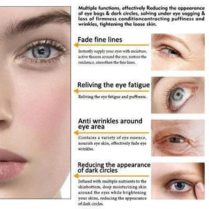 2021 Korea Magic Eye Cream-28 seconds to remove eye bags / dark circles / eye wrinkles