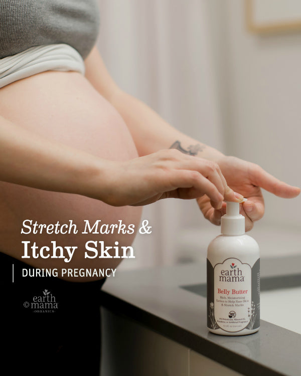 Stretch Marks And Itchy Skin During Pregnancy - Earth Mama Blog