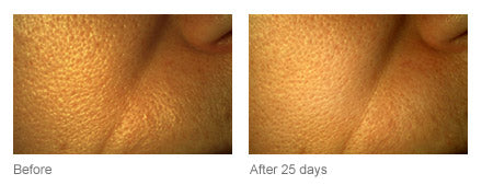 Clinical Proof PHA+ Bio Peel Resurfacing Facial Pads