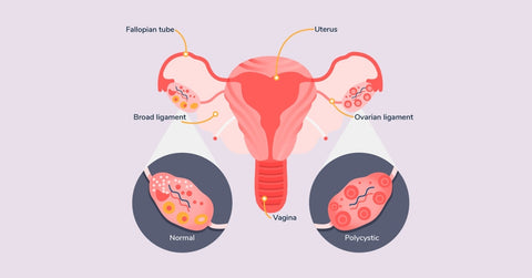 late ovulation pcos