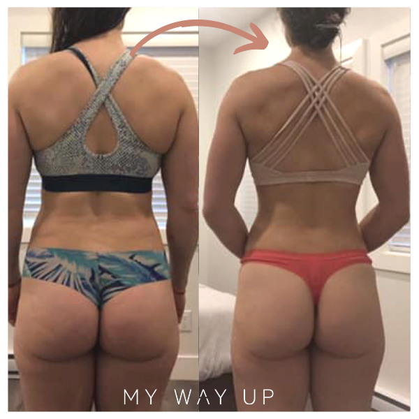 Perfectly Pure Collagen by My Way Up transformation cellulite