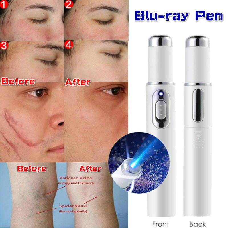 Spider Veins Removal Pen