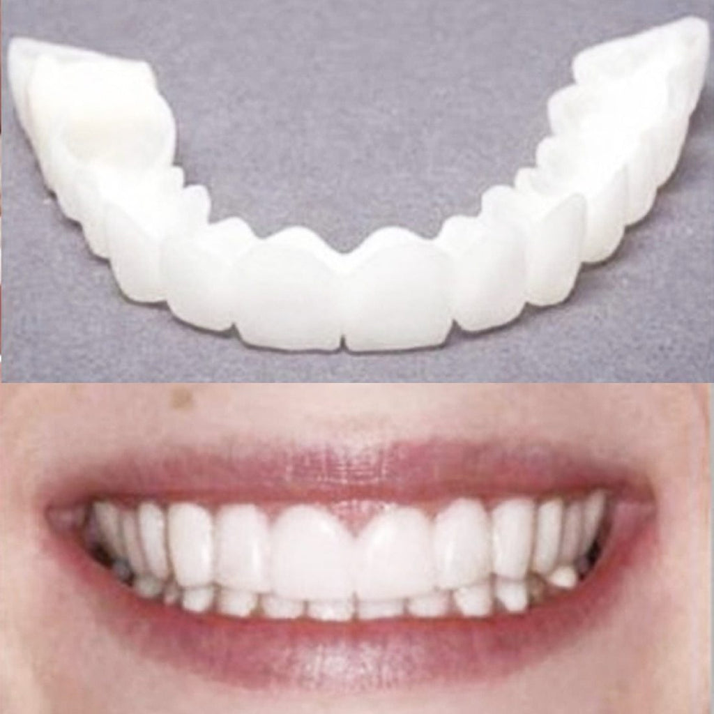 PERFECT SMILE VENEERS™ | Krijg direct mooie tanden | 1+1 GRATIS