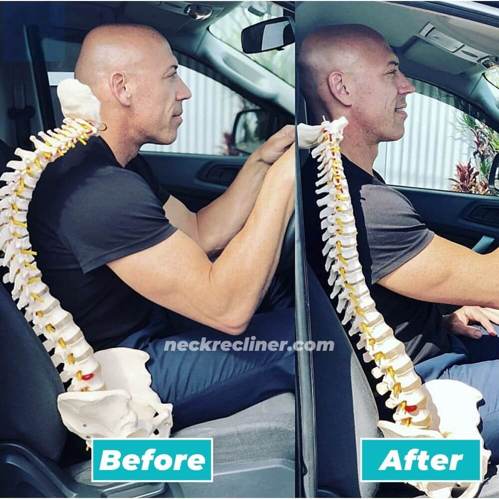 neck recliner before after cervical traction pain relief