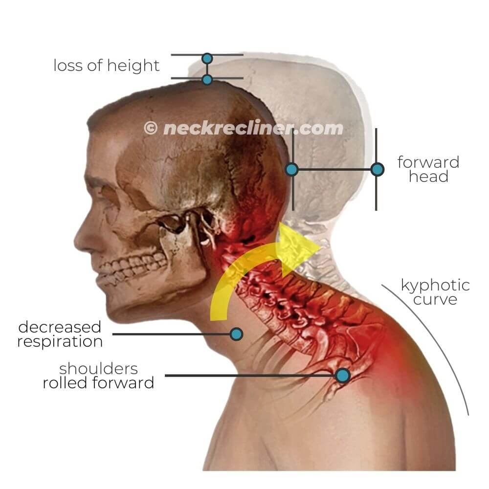 neck recliner effects 1 cervical traction pain relief