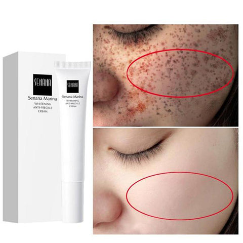 Nicotinamide Freckles Whitening Face Cream Hyaluronic Acid Anti-Wrinkle Remove Spots Firming Dark Circles Skin Care