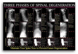 Three Phases of Spinal Degeneration