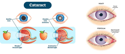 Cataract and diseases caused due to exposure to Ultraviolet radiation
