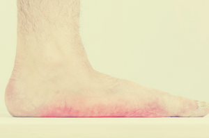 Can Flat Feet Be Fixed?