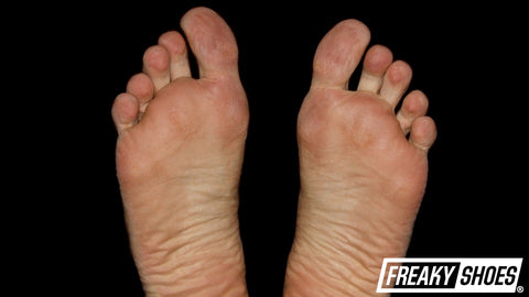 What Is Metatarsalgia In The Foot?