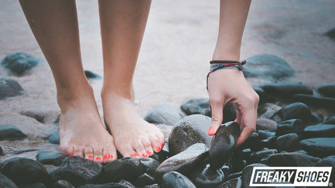 How Do You Know If You Have A Bunion?