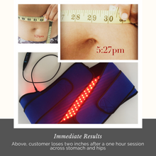 Load image into Gallery viewer, The Nushape Lipo Wrap for Fat-Loss - Patented Technology