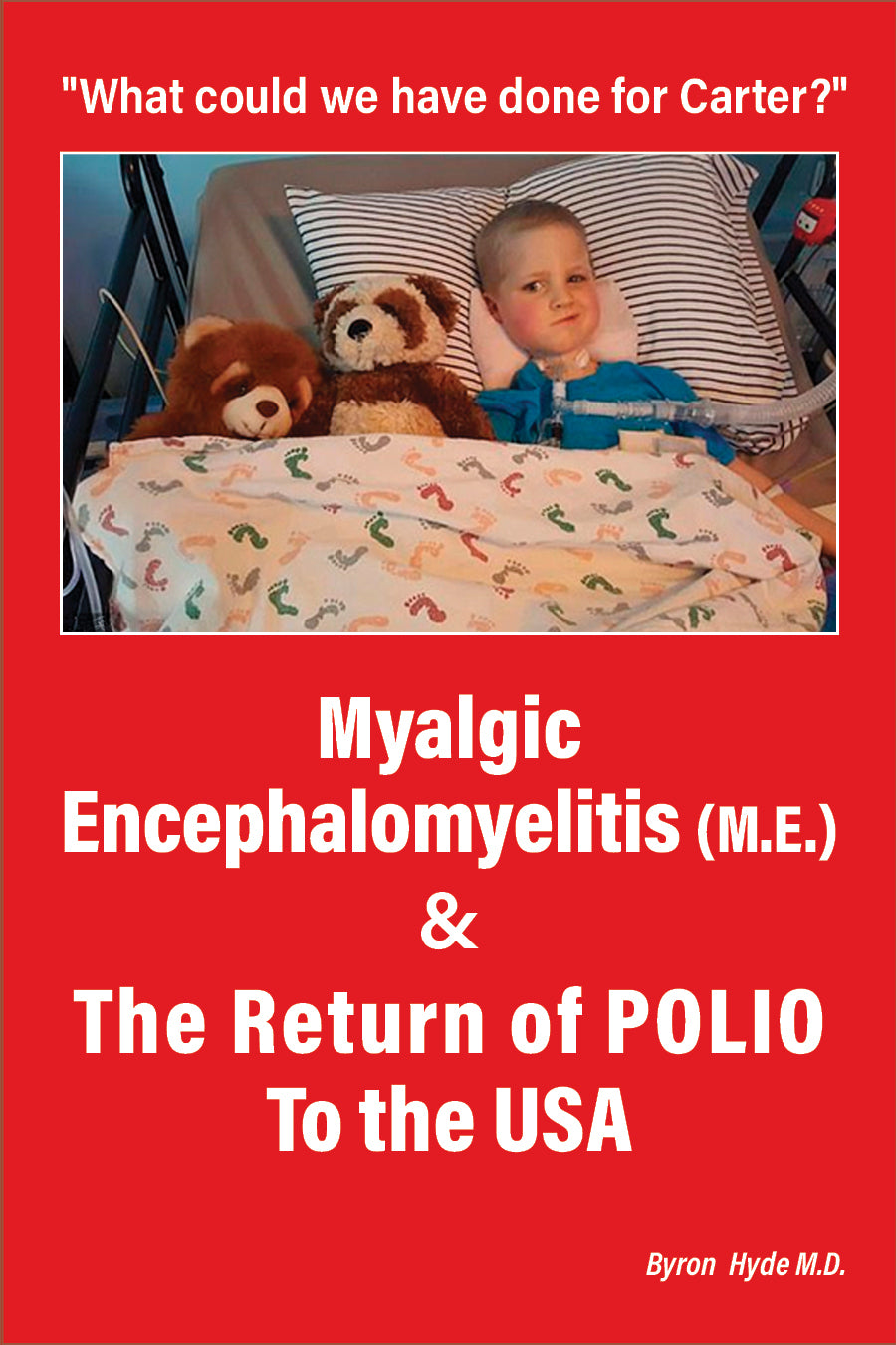 Myalgic Encephalomyelitis (M.E.) & The Return of Polio to the USA