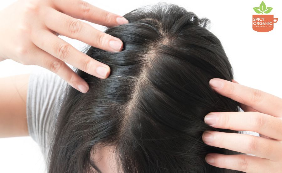 How do you use Amla for Hair Problems?