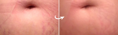 Clarafuse Stretch Marks Before and Afters