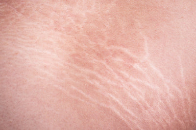 First Signs of Stretch Marks And How To Prevent Them