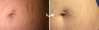 How Silicone Sheets for Stretch Marks Work