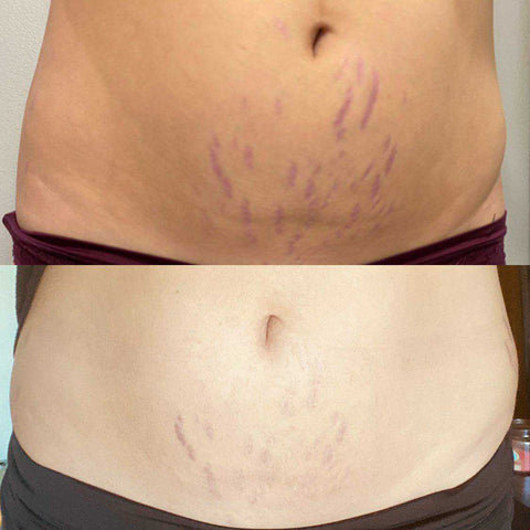 silicone fusion stretch mark patches, before and after, results, how to get rid of stretch marks