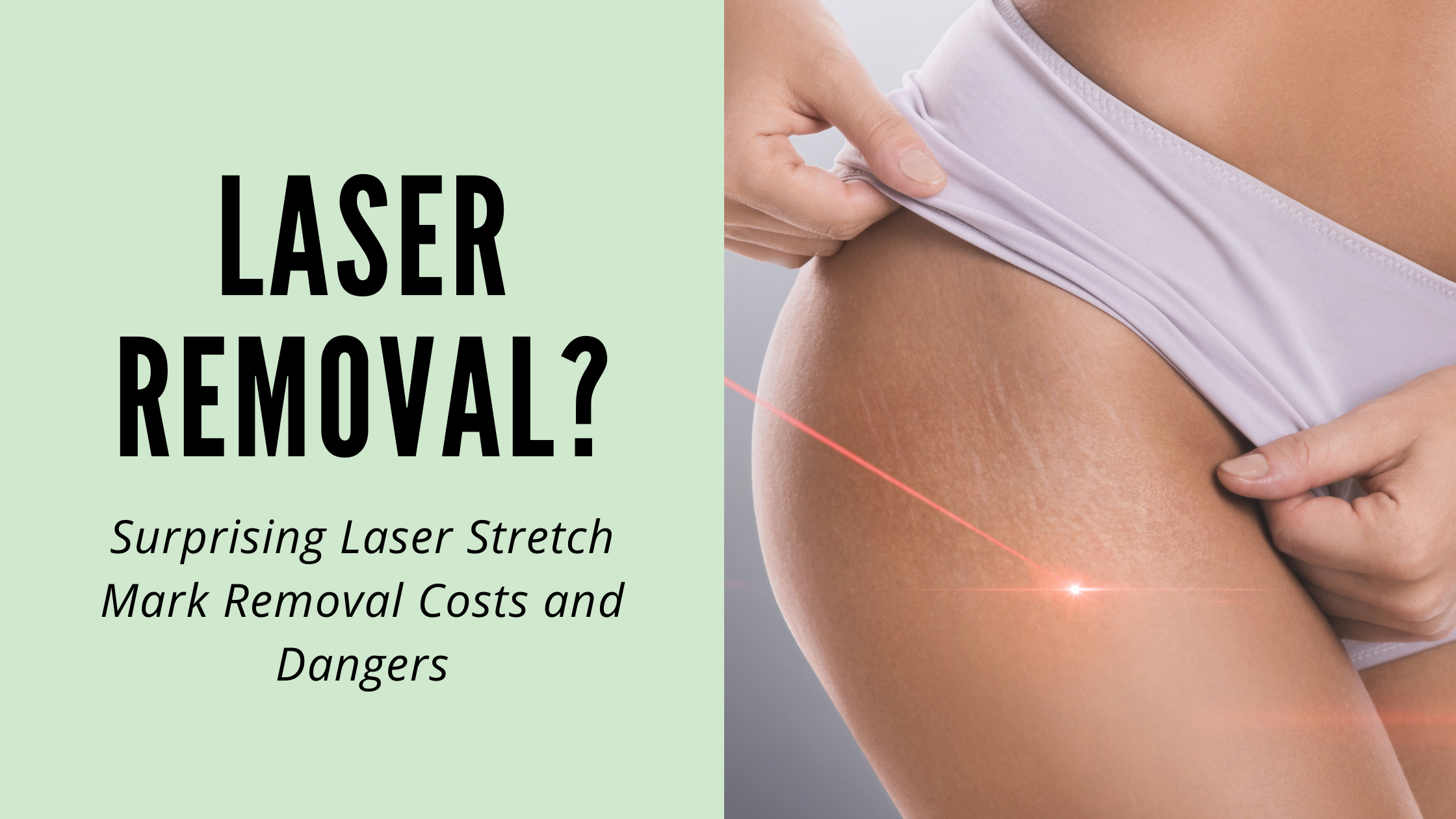 Surprising Laser Stretch Mark Removal Costs and Dangers