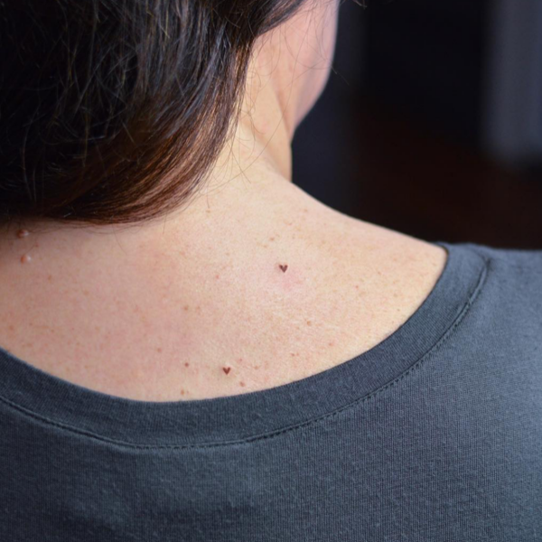 Freckle Tattooing Gallery Image 1