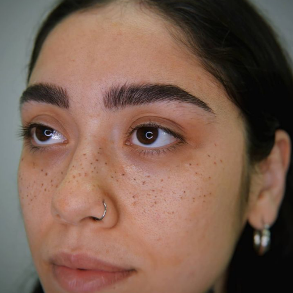 Freckle Tattooing Gallery Image 3