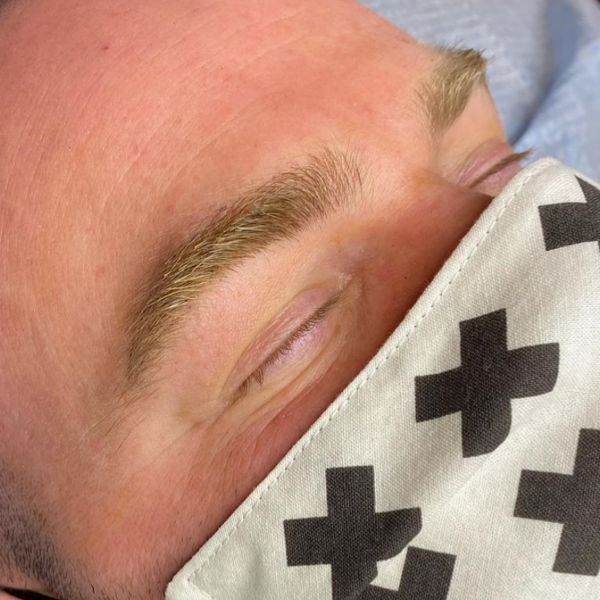 Microblading Gallery Image 3