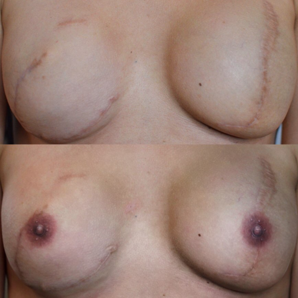Areola Tattooing Gallery Image 5