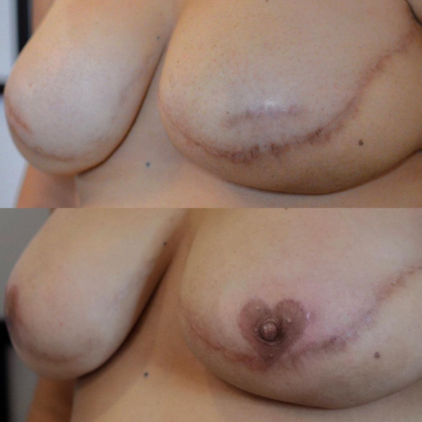 Areola Tattooing Gallery Image 16
