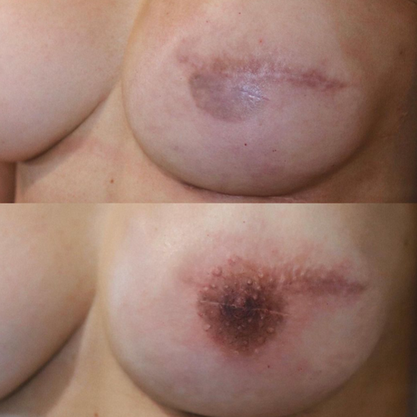 Areola Tattooing Gallery Image 9