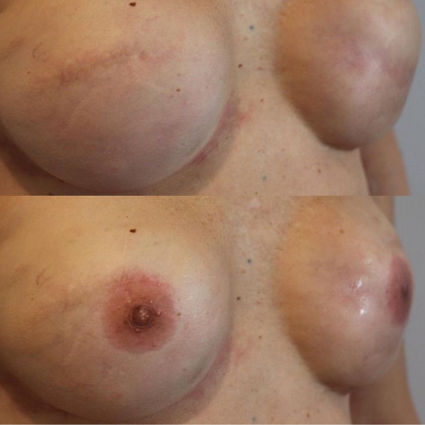 Areola Tattooing Gallery Image 13