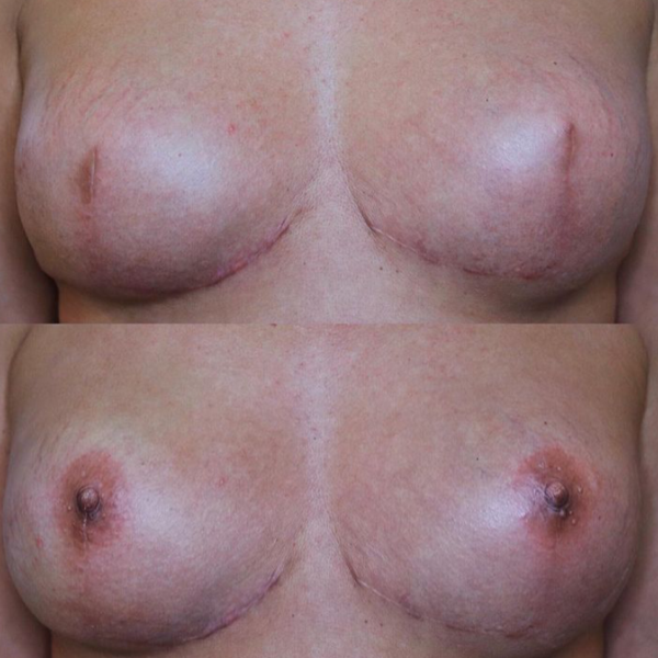Areola Tattooing Gallery Image 15