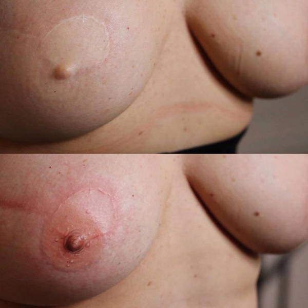 Areola Tattooing Gallery Image 2