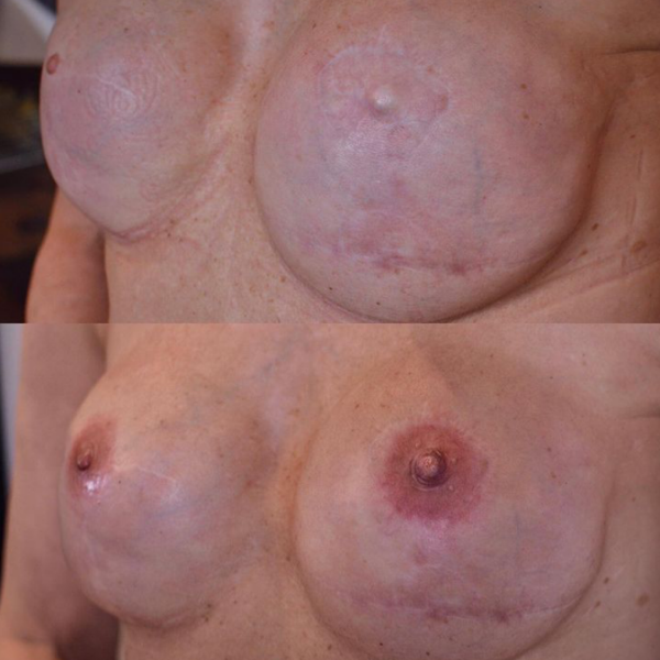 Areola Tattooing Gallery Image 11