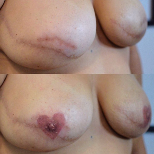 Areola Tattooing Gallery Image 8