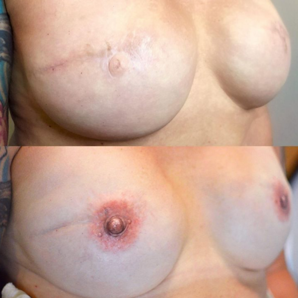 Areola Tattooing Gallery Image 6
