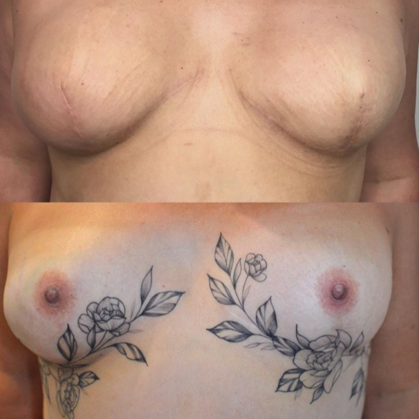 Areola Tattooing Gallery Image 12
