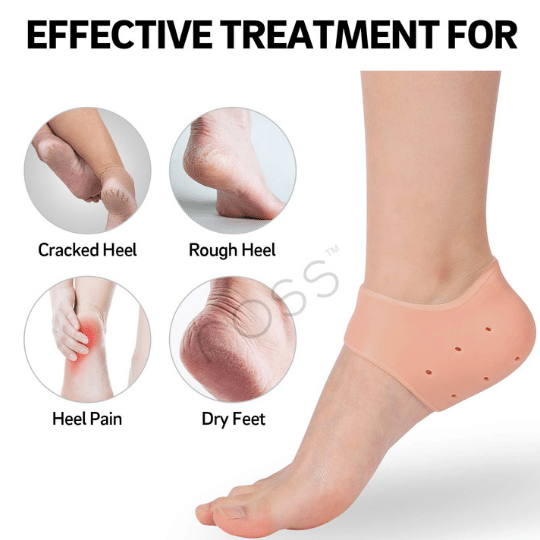Silicone cups help in  Ankle Support. Prevents Chapped, Dry, Crusty, Rough skin