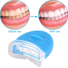 Load image into Gallery viewer, 44% Peroxide Dental Bleaching System Teeth Whitener Dental Equipment 10/6/4/3pc with Led lights