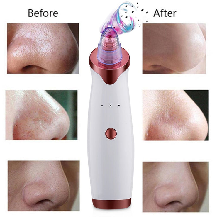 Electric Acne Remover Point Noir Blackhead Vacuum Extractor Tool Black Spots Pore Cleaner Skin Care Face Deep Cleansing Machine