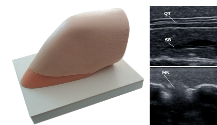 MSK Knee Blocks Ultrasound