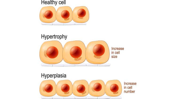 Normal cells, hypertrophy, and hyperplasia