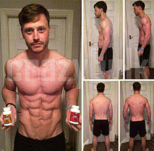 John before and after pictures using Anadrole