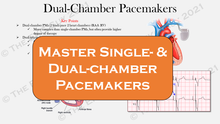 Load image into Gallery viewer, Ultimate Pacemaker Breakdown (1st Ed)