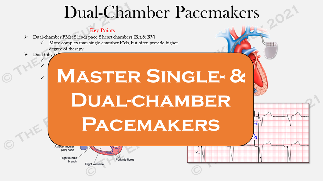 Ultimate Pacemaker Breakdown (1st Ed)