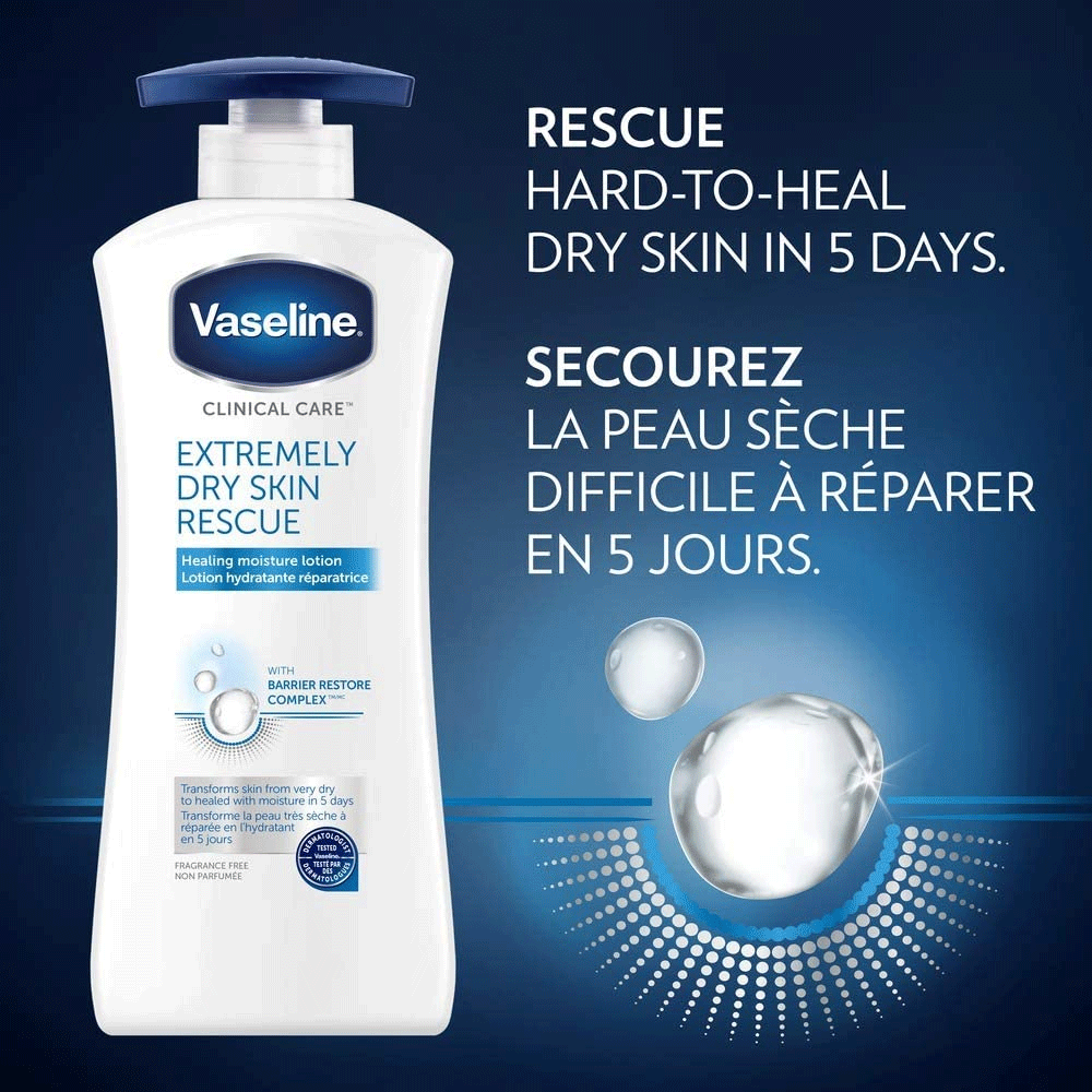 Vaseline Lotion | Extremely Dry Skin Rescue | 400 ml